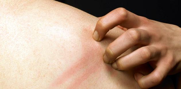 Skin Symptoms from Stress
