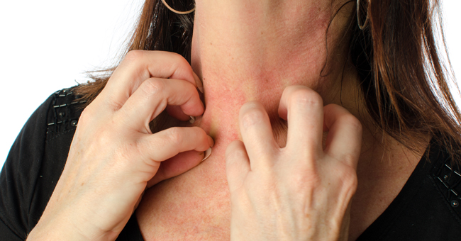 Chronic Skin Symptoms – Look for Stress First!